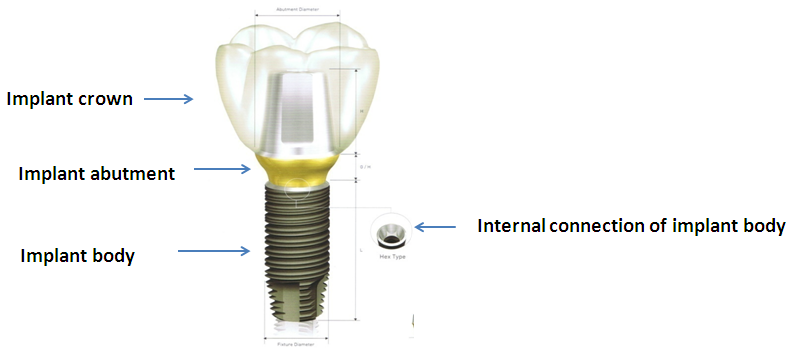 dental-implant-125