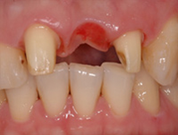 dental-implant-35