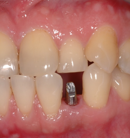 dental-implant-48
