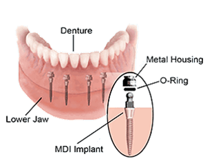 dental-implant-67