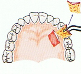 dental-implant-83