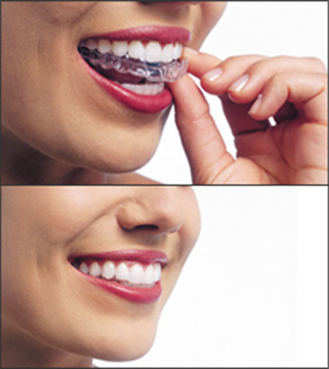 what-is-invisalign