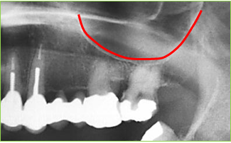 dental-implant-119a