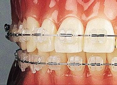 how-do-braces-work