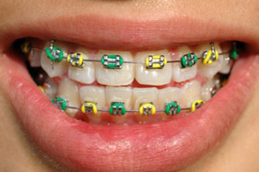 traditional-metal-braces